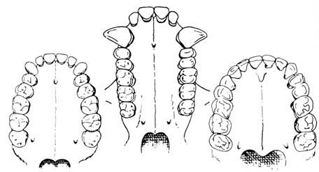 Överkäke hos Australopithecus, gorilla och människa
